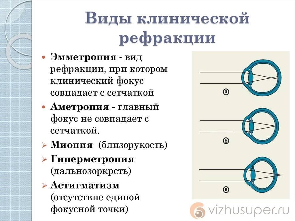 Что такое рефракция глаза: виды, нарушения oculistic.ru что такое рефракция глаза: виды, нарушения