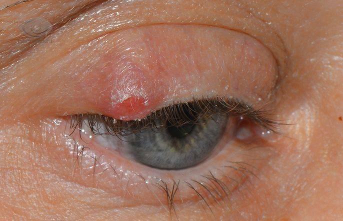 Киста на внутренней стороне века лечение. почему появляется киста на глазу и что делать? осложнения после лечения