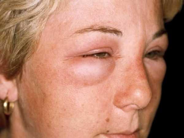 Как быстро снять отек глаз после аллергии