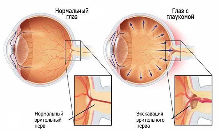 Диета при глаукоме: какие продукты можно и нельзя есть при заболевании, особенности питания при повышенном и пониженном давлении