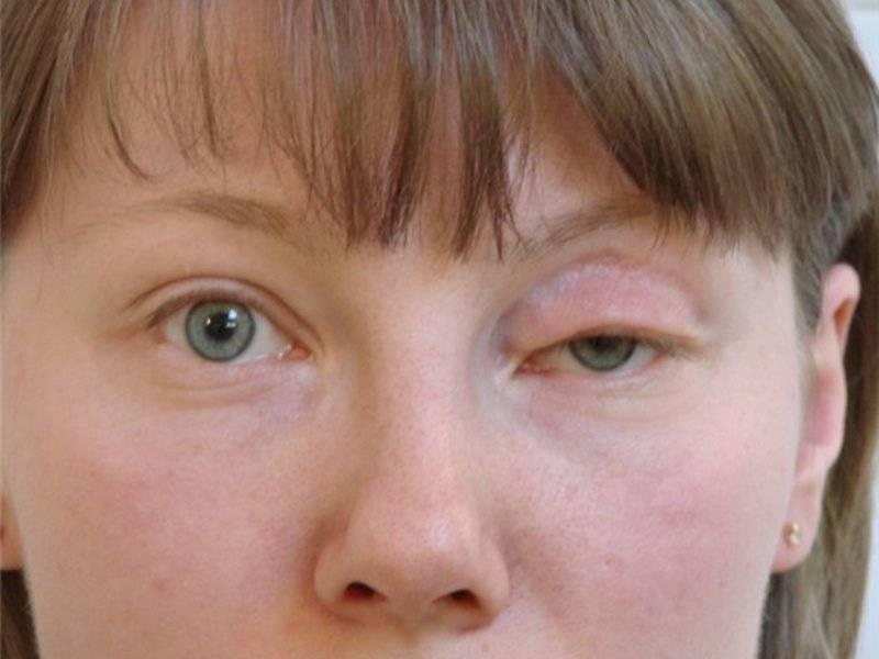 Отек верхнего века одного глаза - причины и лечение у взрослых, отекают верхние веки глаз: причины   медицинский портал spacehealth