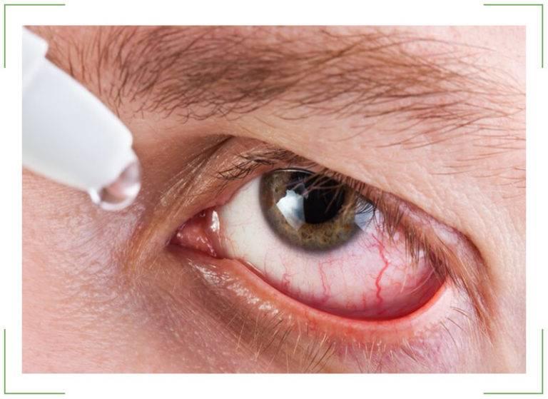 Советы специалиста: что делать, если режет глаза?