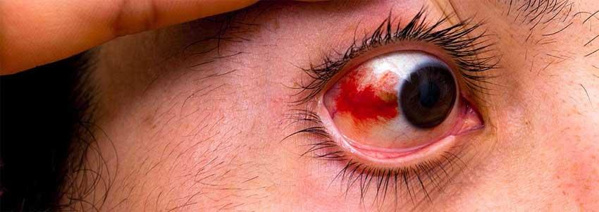 Травма глаз – симптомы, последствия