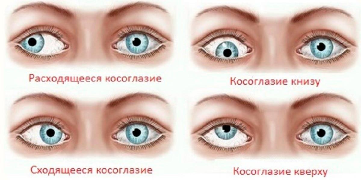 Косоглазие у взрослых: причины возникновения и способы лечения