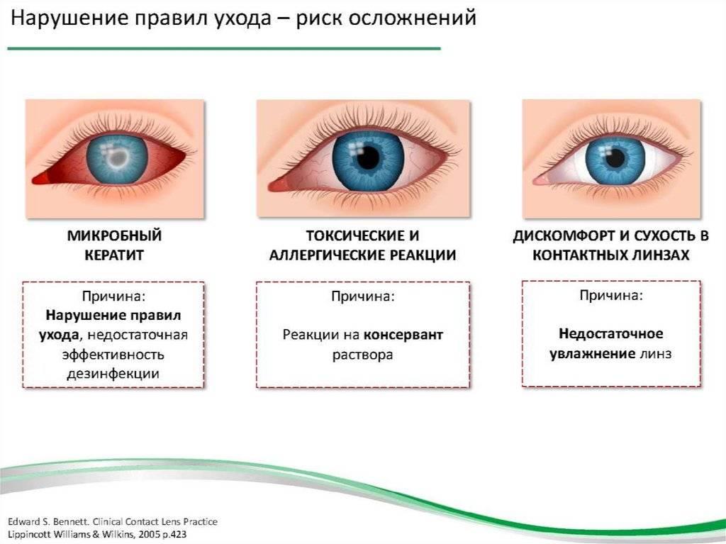 Синдром сухих глаз: симптомы, причины и лечение