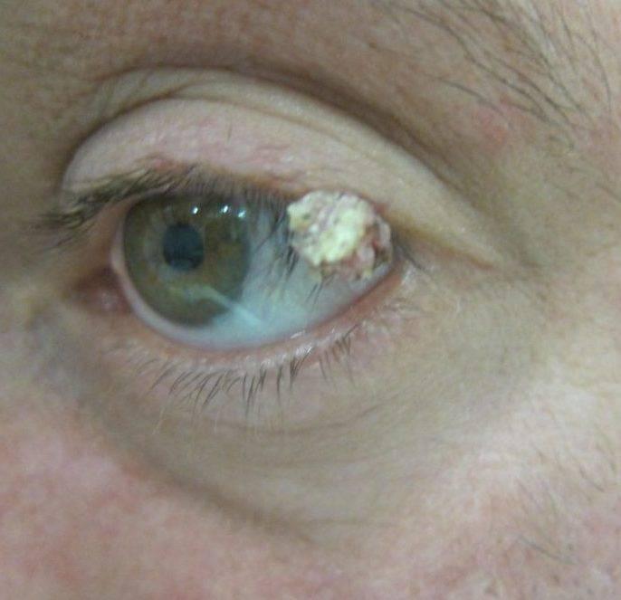Как удалить папиллому на веке, и как она влияет на глаз