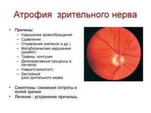 Атрофия зрительного нерва, симптомы, диагностика, способы лечения