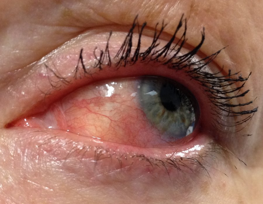 Воспаление эписклеры глаза: причины и симптомы, лечение эписклерита у взрослого и ребёнка