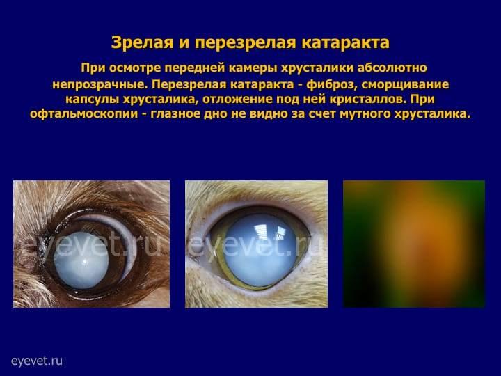 Вторичная катаракта после замены хрусталика - лечение лазером