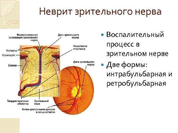 Воспаление в зоне глазного нерва