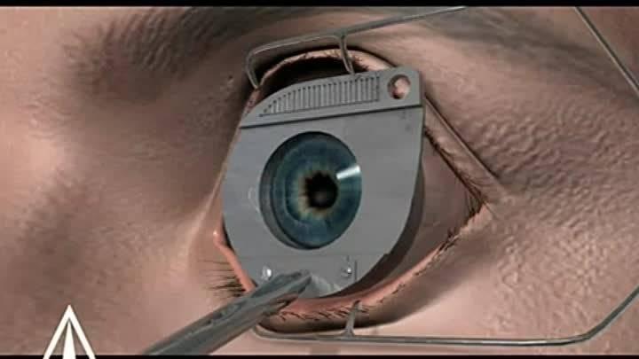 Лазерная коррекция зрения – как проходит, как делают и проводится