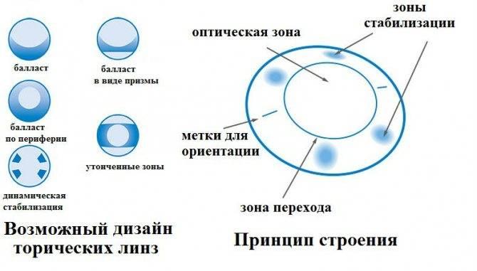 Чем отличаются торические линзы от обычных | ocularhelp