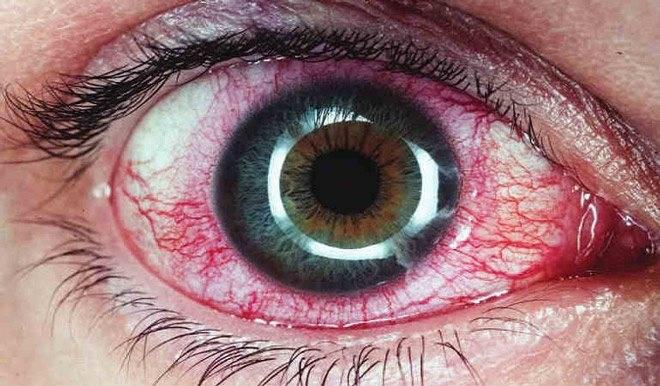Увеит глаза как совокупность заболеваний сосудистой оболочки глаз