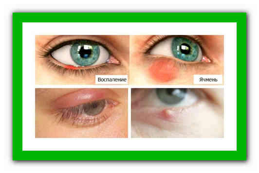 Ячмень на глазу – причины, симптомы и лечение в домашних условиях | медицина на; добро есть