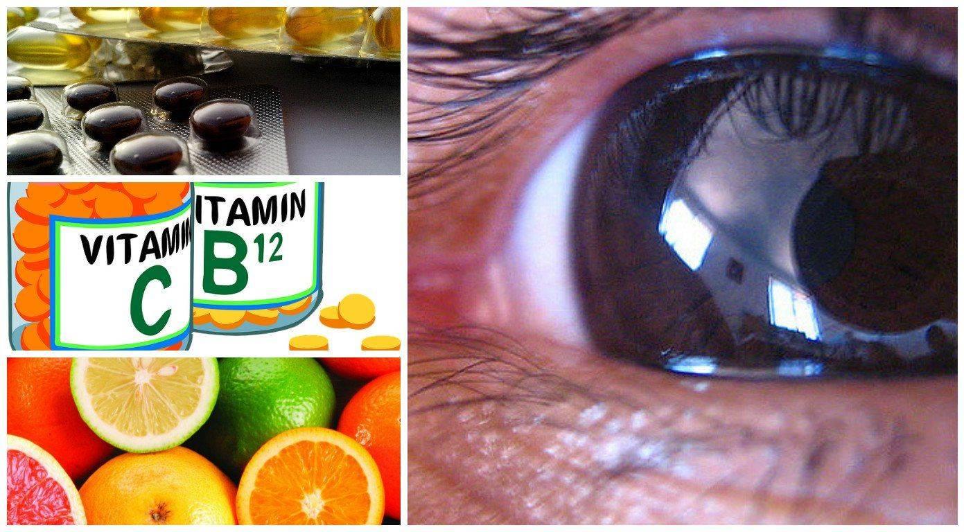 Питание при глаукоме — диета и витамины для глаз при глаукоме