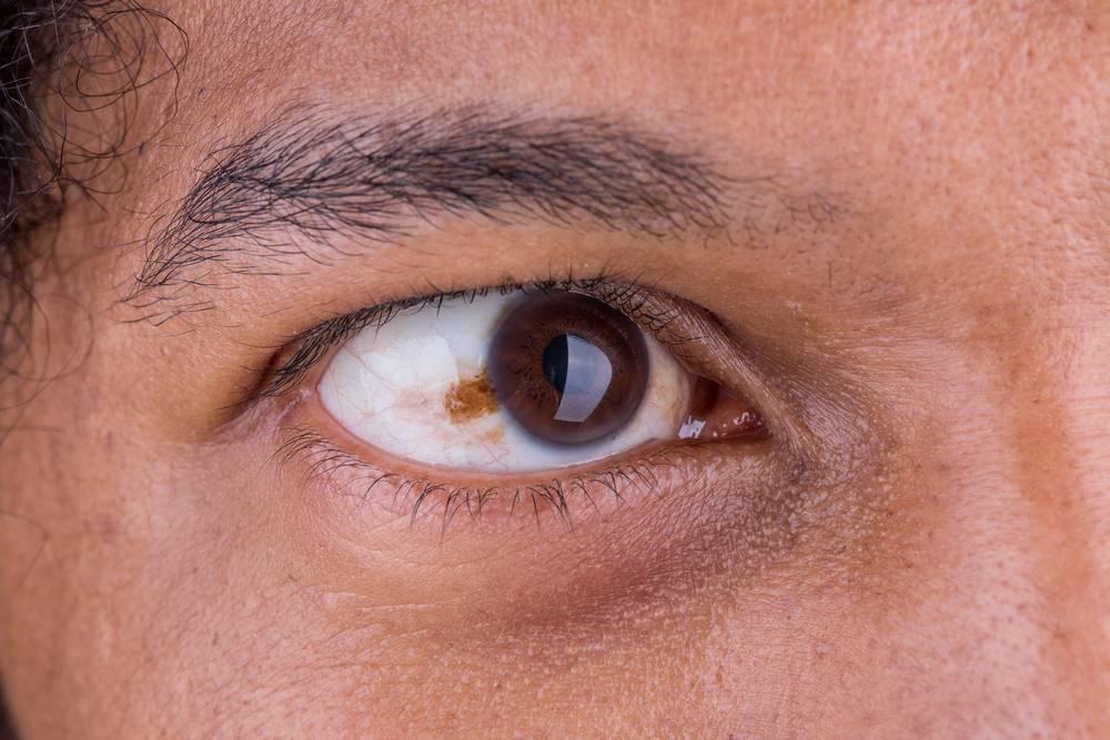 Рак сетчатки глаза у детей: симптомы, лечение, прогноз