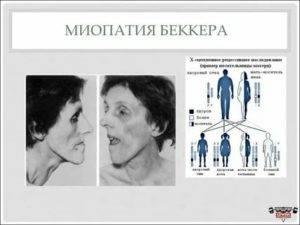 Мышечные патологии: основные причины возникновения миопатии