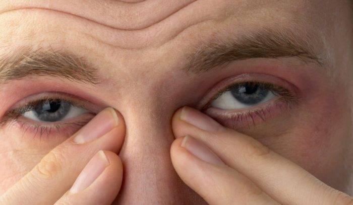 """Дергается веко правого, левого глаза - """"здоровое око"""""""