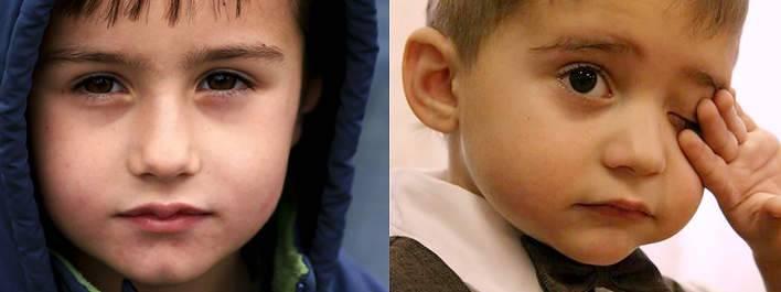Синие круги под глазами у подростка причины. круги под глазами у ребенка: причины и что делать. основные причины появления темных кругов под глазами.