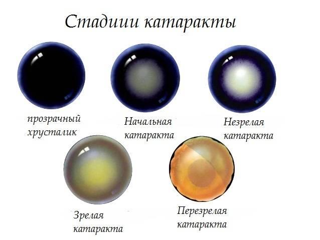 Головные боли, сопровождающиеся ухудшением зрения? это открытоугольная глаукома