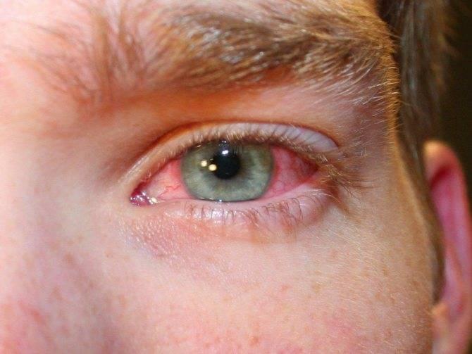 Сосуды в глазах: какие бывают заболевания, симптомы и лечение