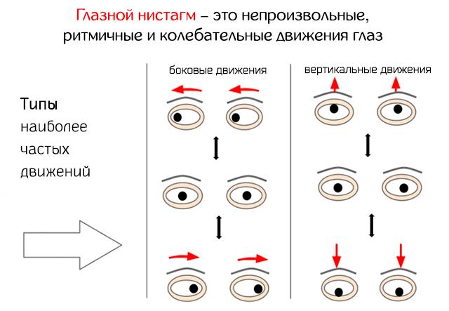 Мерцание в глазах - причины, что делать