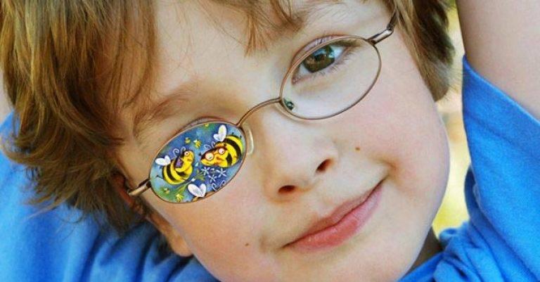 Детские окклюдеры: применение, выбор и использование