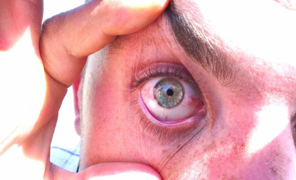 Ангиопатия глазной сетчатки