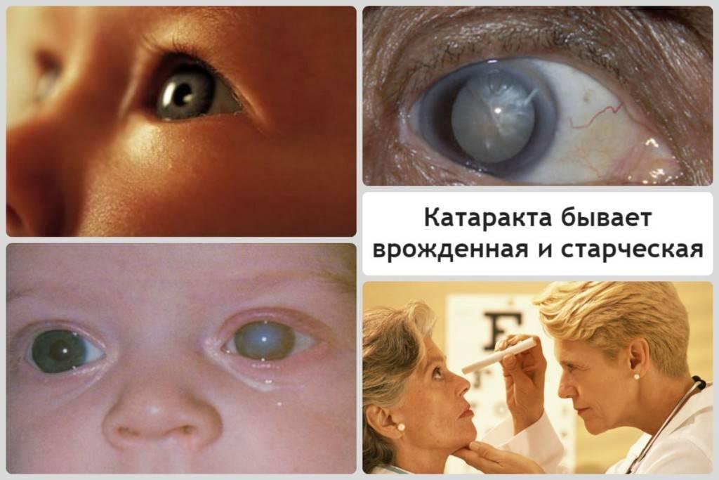 Катаракта: что это такое, причины, симптомы, лечение и профилактика