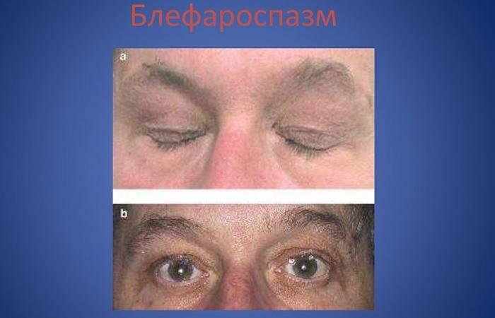 Блефароспазм: что это такое, причины и симптомы, спазм века глаза, лечение