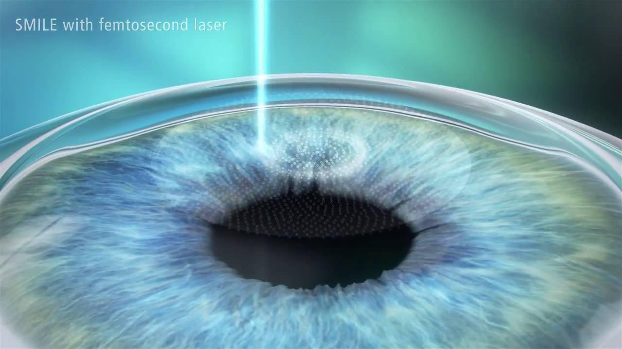 Relex smile (операция по коррекции зрения смайл): суть технологии, проведение и эффективность