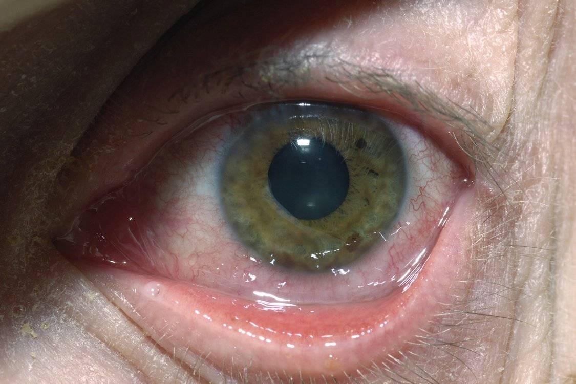 Герпес глаза (герпетическое поражение глаз)