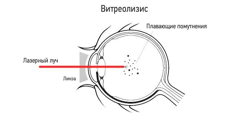 Витреолизис – лечение деструкции стекловидного тела