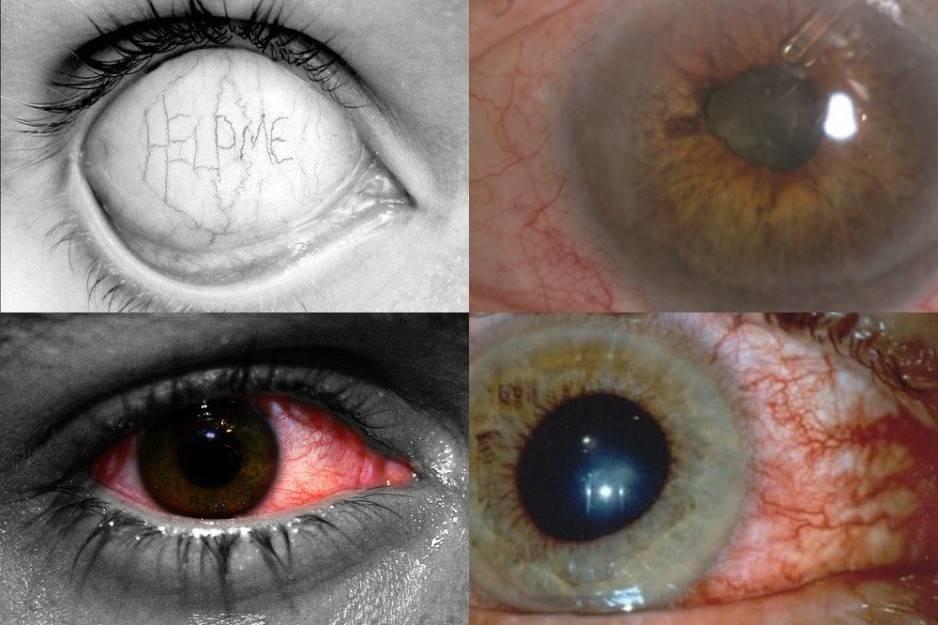 Сильный блеск в глазах. почему блестят глаза когда болеешь? от чего блестят глаза