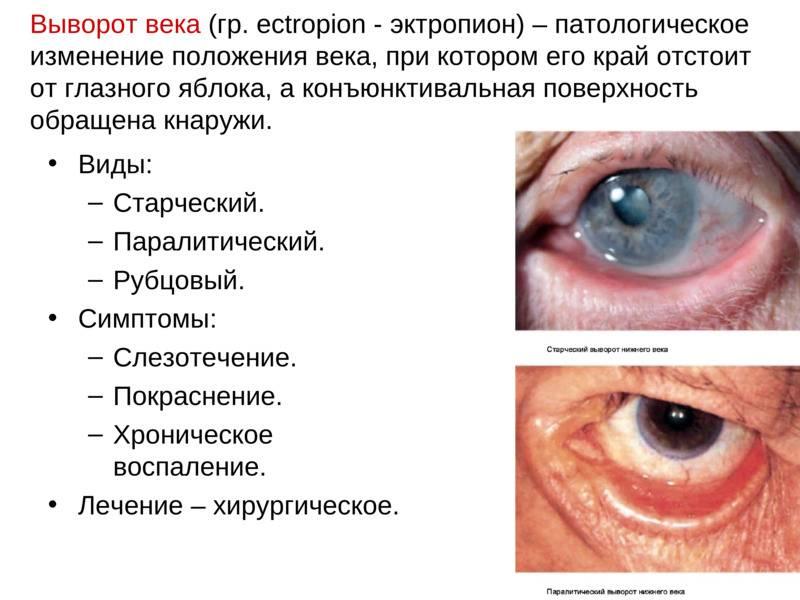 """Выворот века: симптомы и лечение - """"здоровое око"""""""