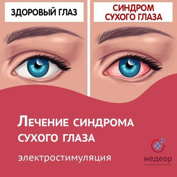 Сухой глаз. симптомы синдрома сухого глаза. причины сухости в глазах, диагностика и лечение патологии. какие капли капать при сухом глазе? :: polismed.com