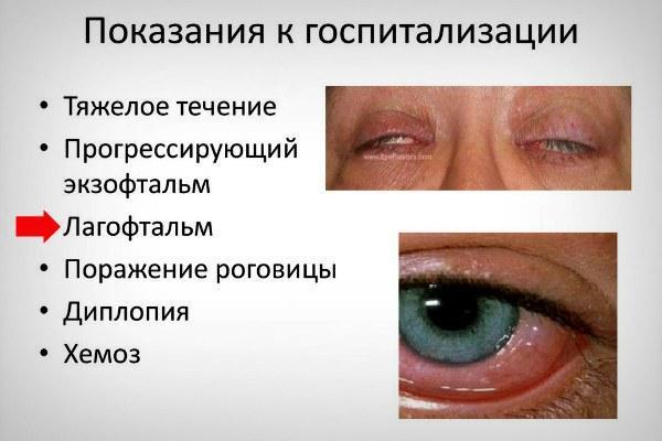 Глаза не смыкаются даже при всём желании! лагофтальм: что это такое?