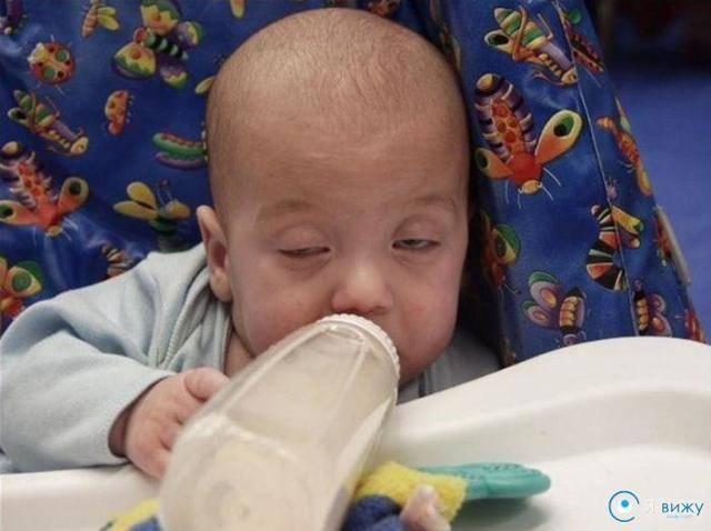 Новорожденный закатывает глаза, в том числе когда засыпает: причины и рекомендации