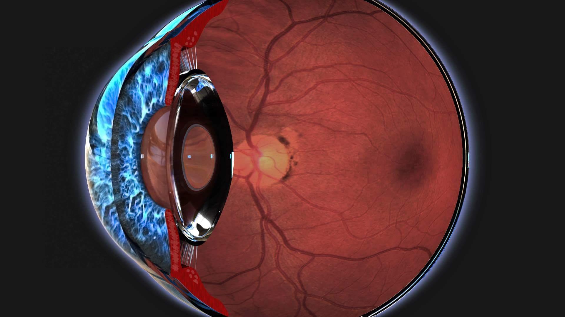 Вся правда о дистрофии сетчатки глаза: излечима ли болезнь?