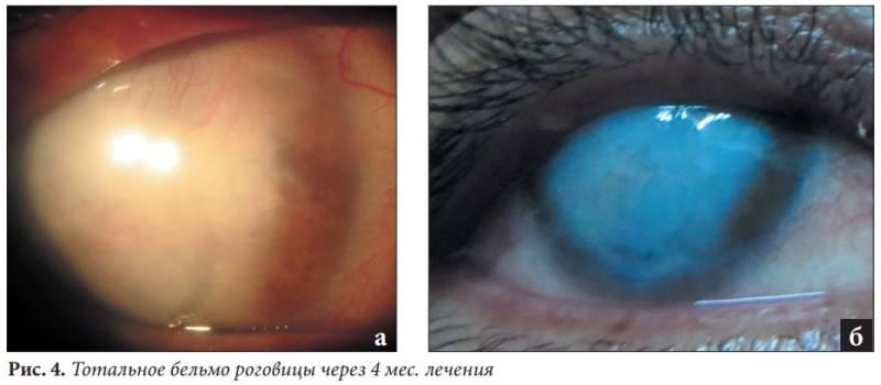 """Воспаление роговицы глаза: симптомы и лечение - """"здоровое око"""""""