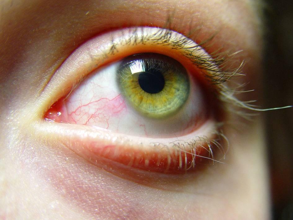 Почему слезятся глаза на солнце?