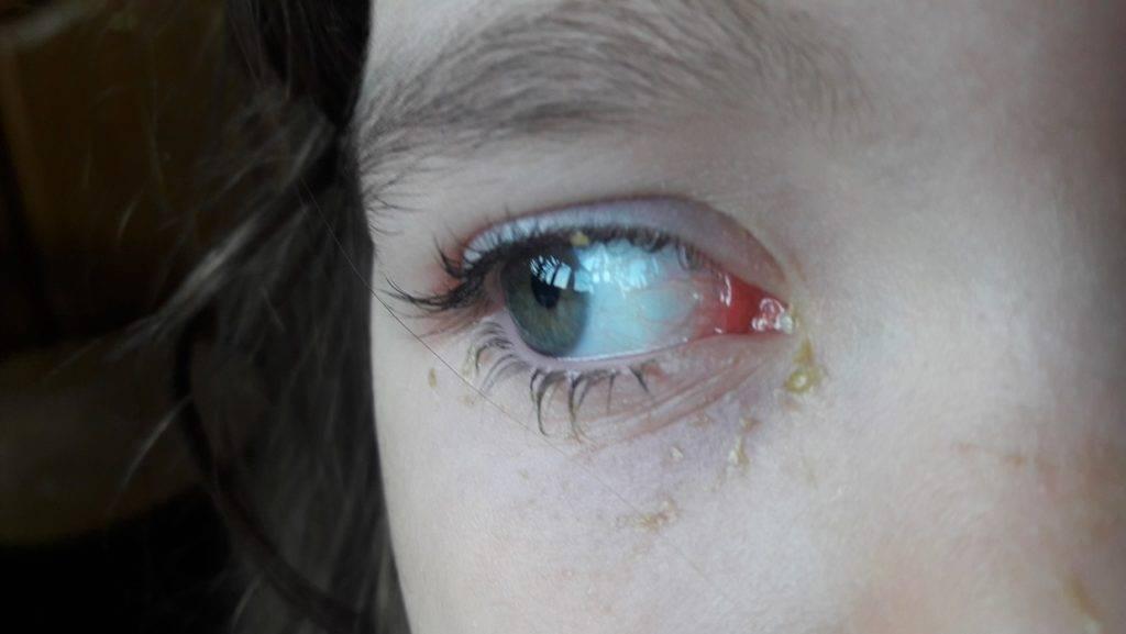 Почему у ребенка гноятся глаза: выделения при простуде, при орви и после сна