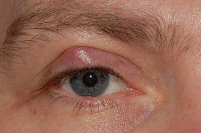 Халязион нижнего века: лечение в домашних условиях, как удаляют, причины, симптомы (фото)