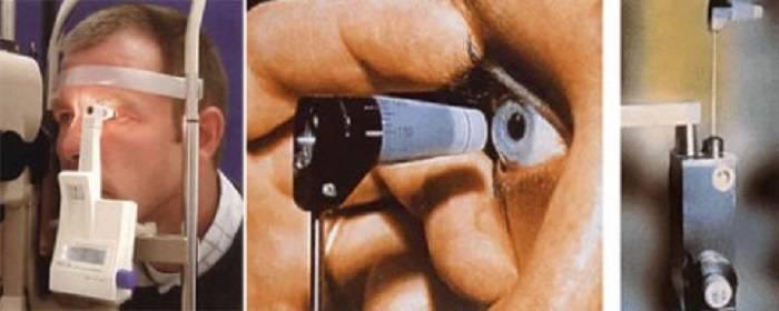 Диагностика повышенного внутриглазного давления: бесконтактная тонометрия и тонометрия по маклакову