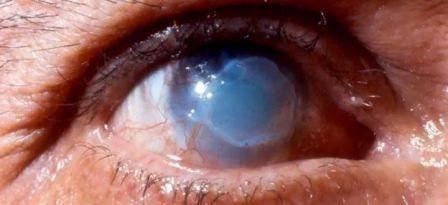 Химический ожог глаза: причины, симптомы, первая помощь, лечение