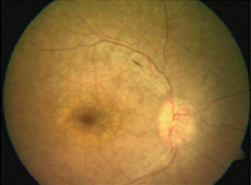 Амавроз лебера: причины и лечение заболевания глаз - полной слепоты врожденной