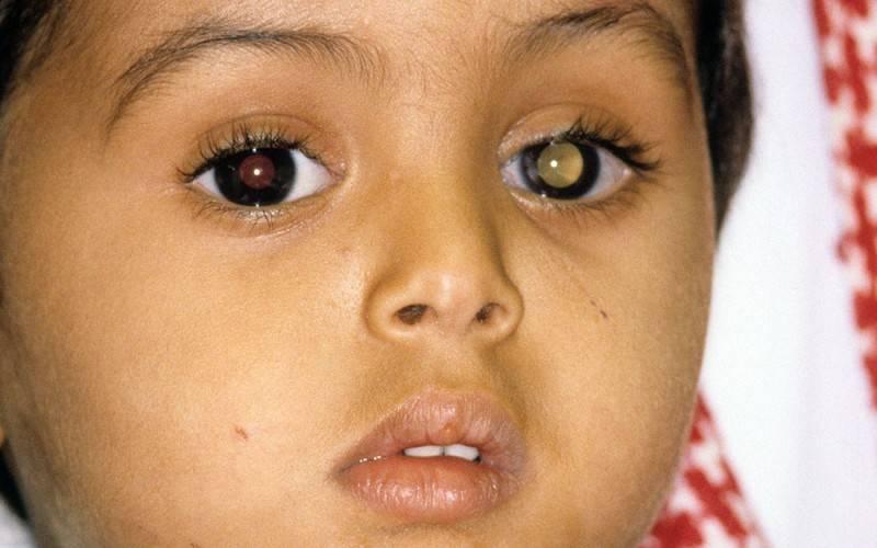 Как выглядит рак глаза