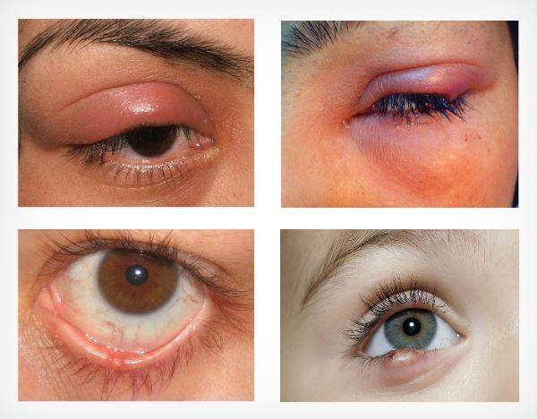 Ячмень на глазу (гордеолум): лечение и ответы на популярные вопросы