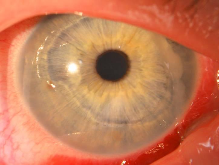 Первая помощь и лечение при ожогах глаза