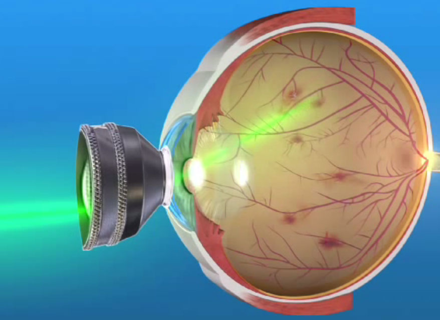 Что такое окт сетчатки глаза